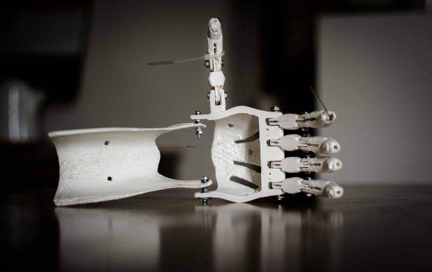 3d printers for medical, prosthetics